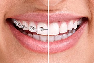 Smile half with braces and half with clear aligners