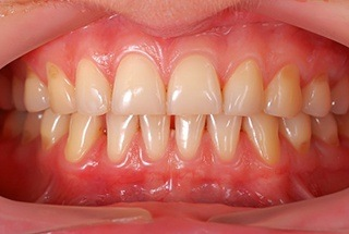 A mouth with mild gum disease