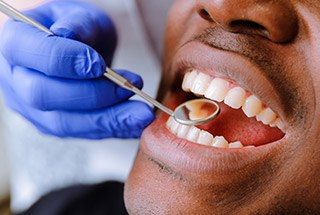 Closeup of patient's smile during dental exam