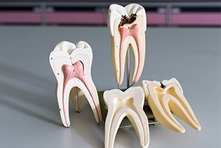 Models of teeth with inside of tooth visible
