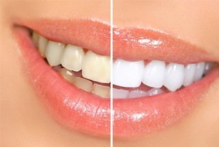 smile before after whitening