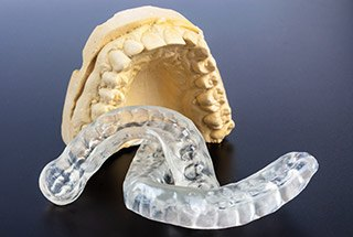 Model smile and occlusal splints