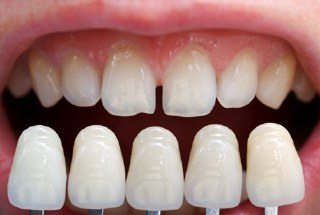 A set of veneers compared to imperfect teeth.