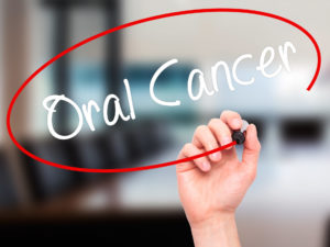 Oral cancer sign